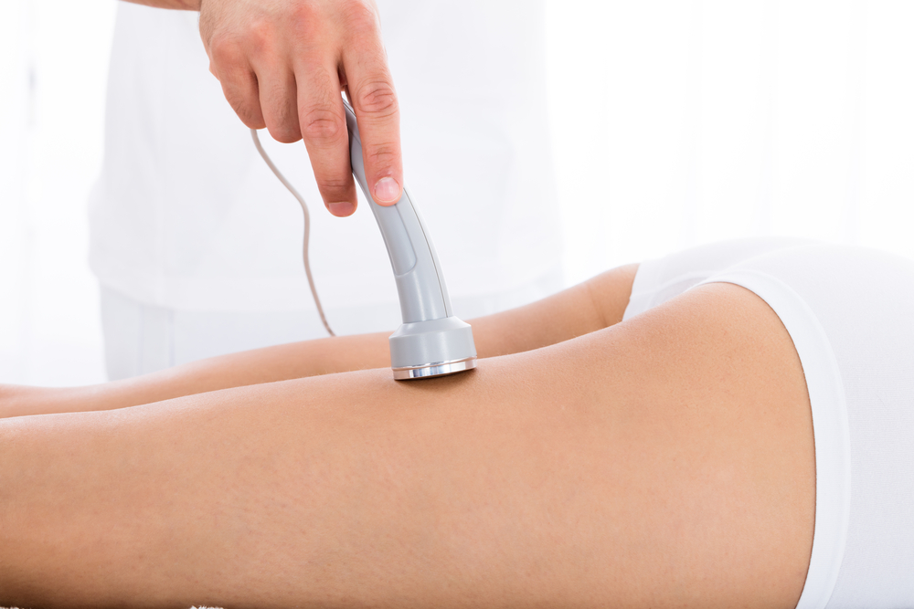 microdermabrasion for stretch marks